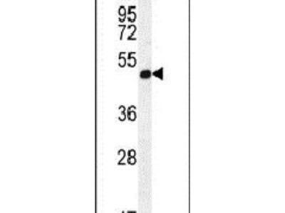 A4GALT Polyclonal Antibody