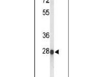 ABHDB Polyclonal Antibody