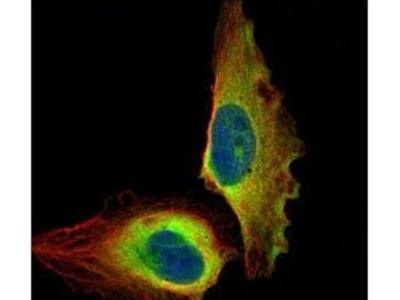 NFkB p65 Polyclonal Antibody