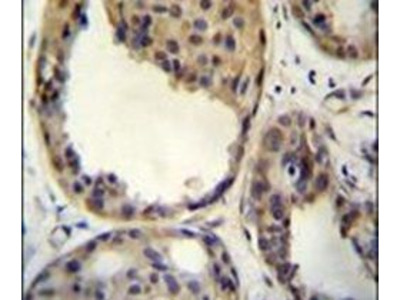 AKT1 Polyclonal Antibody