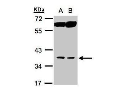 ACOT8 Polyclonal Antibody
