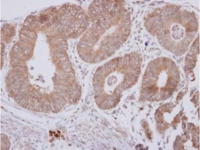 CPEB1 Polyclonal Antibody
