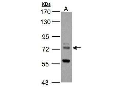ZDHHC17 Polyclonal Antibody
