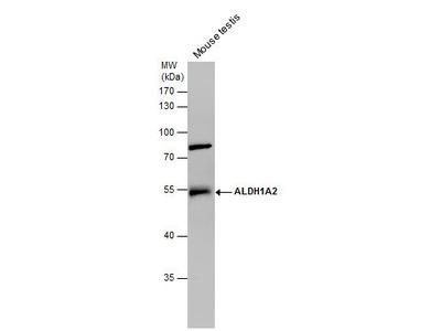 ALDH1A2 Polyclonal Antibody