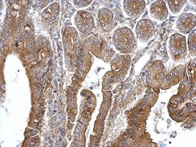 TPK1 Polyclonal Antibody
