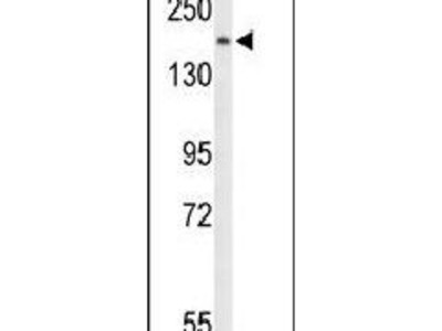 PLCB1 Polyclonal Antibody
