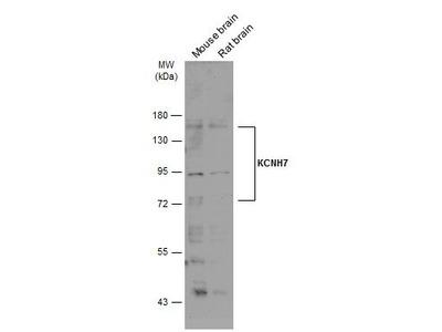 KCNH7 Polyclonal Antibody