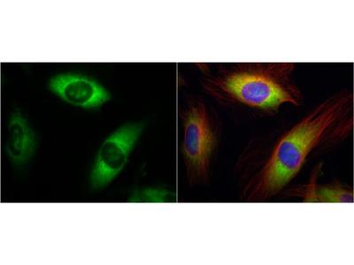 RPL17 Polyclonal Antibody