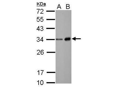 Neutrophil elastase Polyclonal Antibody