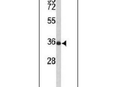 SLC25A17 Polyclonal Antibody