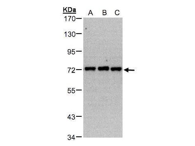 PIP5K1C Polyclonal Antibody