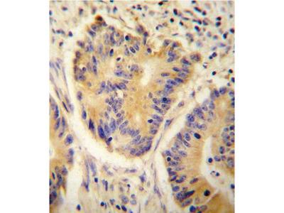 ADH4 Polyclonal Antibody