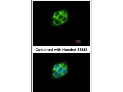 ABAT Polyclonal Antibody