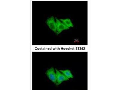 CK2 alpha-1 Polyclonal Antibody