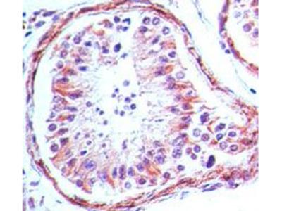 TLR4 Monoclonal Antibody (76B357.1)