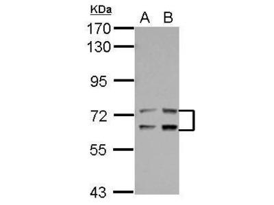 LTA4H Polyclonal Antibody