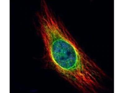 Cathepsin S Polyclonal Antibody