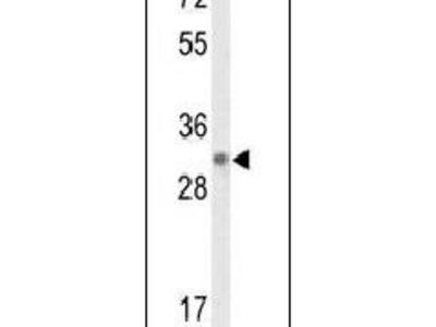 DAGLB Polyclonal Antibody