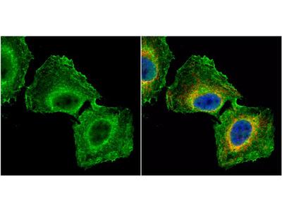 GNB1 Polyclonal Antibody