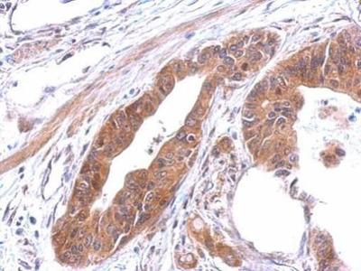 alanyl-tRNA Synthetase Polyclonal Antibody