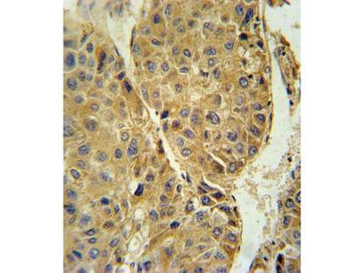 beta-3 Tubulin Polyclonal Antibody