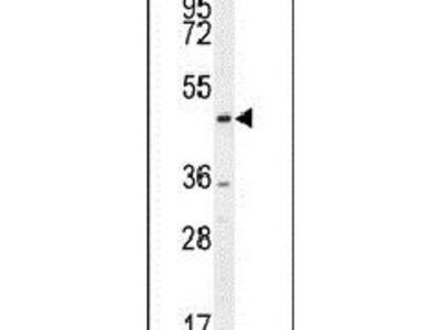 CtBP1 Polyclonal Antibody