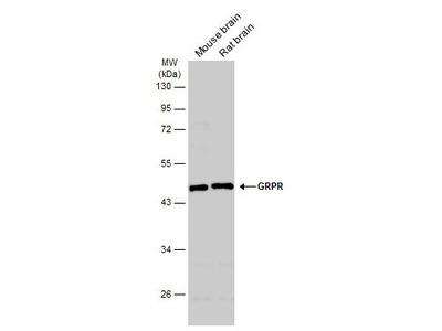 GRPR Polyclonal Antibody