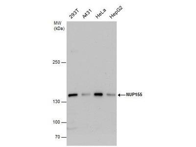 NUP155 Polyclonal Antibody