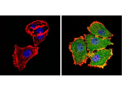 AKT2 Monoclonal Antibody (4H7)