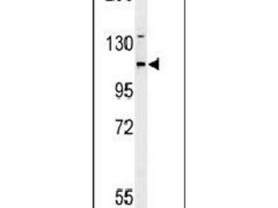Adenylate Cyclase 4 Polyclonal Antibody