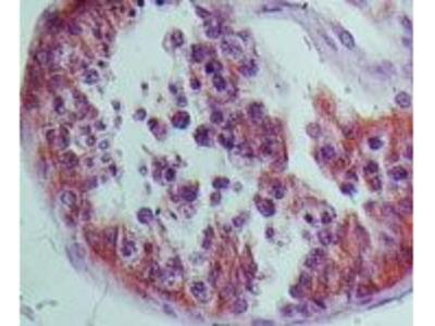 NALP9 Polyclonal Antibody