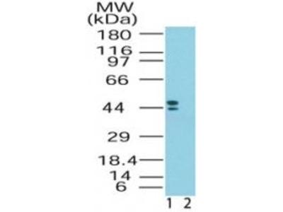 CRHR2 Polyclonal Antibody