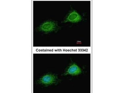 PITRM1 Polyclonal Antibody