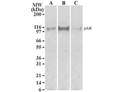 Phospho-Androgen Receptor (Ser213, Ser210) Monoclonal Antibody (156C135.2)