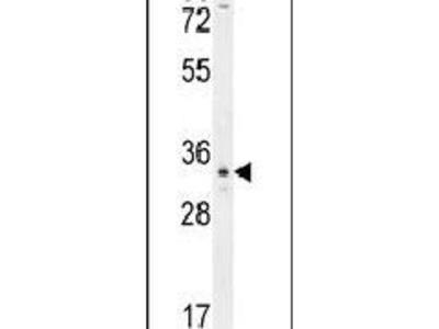 OR6C4 Polyclonal Antibody