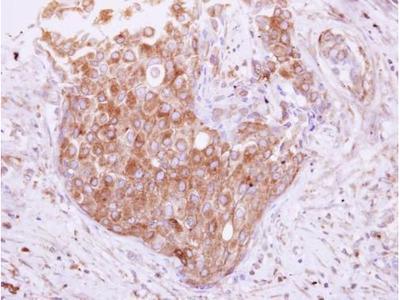 TOLLIP Polyclonal Antibody