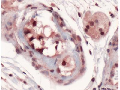 SOX9 Polyclonal Antibody