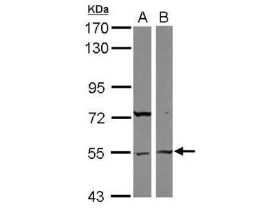 ASB3 Polyclonal Antibody