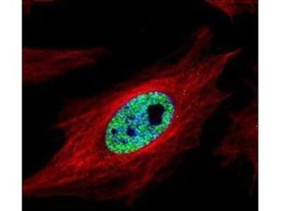 SMARCC1 Polyclonal Antibody