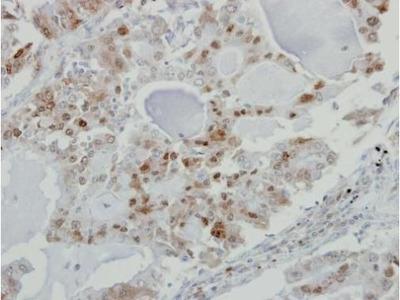 KPNA3 Polyclonal Antibody