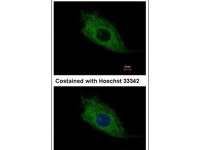 TMEM66 Antibody