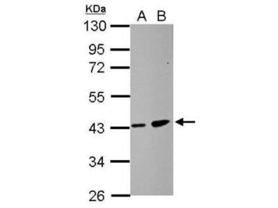 ZDHHC11 Antibody