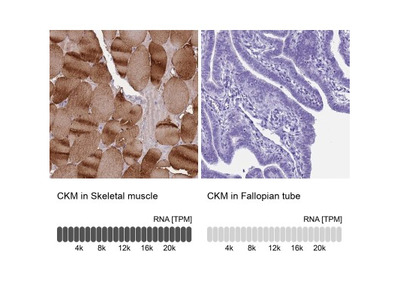 Creatine Kinase, Muscle / CKMM Antibody