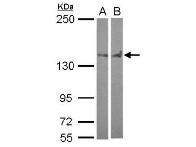 PTPN14 / PTPD2 Antibody