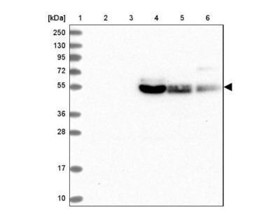 GLUT10 Antibody