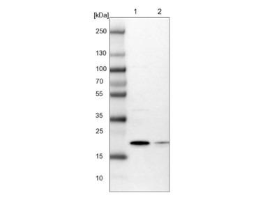 ARL8A Antibody