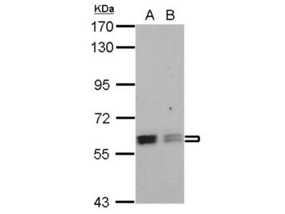 ROD1 Antibody