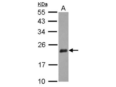 Rabbit Polyclonal NUDT3 Antibody