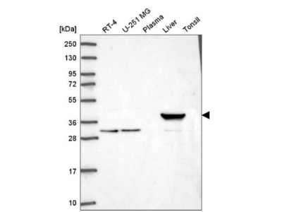 Hydroxyacid Oxidase-1 / HAO-1 Antibody