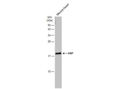Atrial Natriuretic Peptide/ANP Antibody